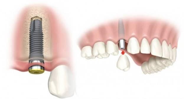 cay-ghep-implant-co-dau-khong