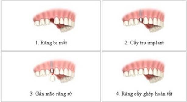 cay-ghep-implant-khong-gay-dau-nhuc-nhieu