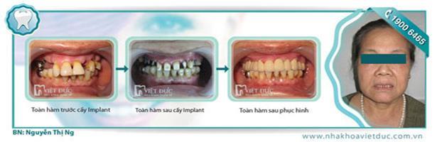 khach-hang-cay-ghep-implant-tai-viet-duc