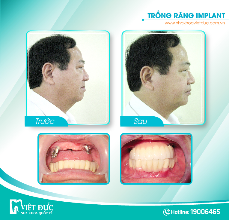 khach-hang-trong-implant