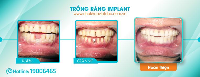 sau-khi-cay-ghep-implant