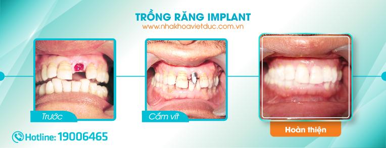 truoc-va-sau-khi-trong-rang-implant