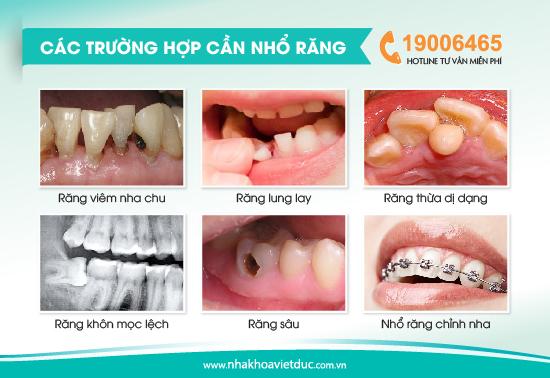 truong-hop-can-nho-rang