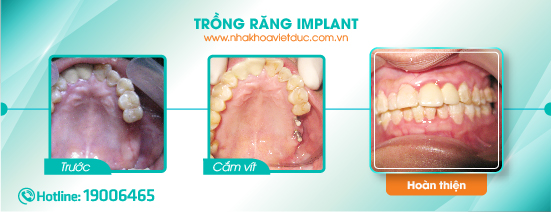 khach-hang-cay-implant2