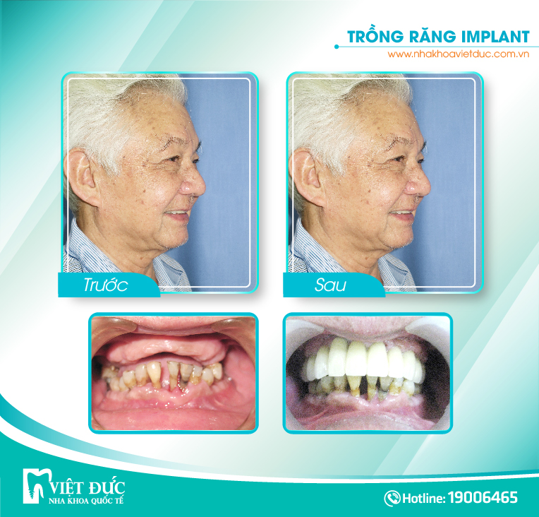 khach-hang-cay-implant3