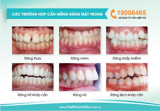 Niềng răng mặt trong phù khắc phục được hầu hết các sai lệch răng như: hô, móm, khấp khểnh…