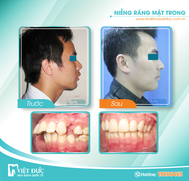 Vũ Quang Huy, 32 tuổi, Hưng Yên, răng hô, khấp khểnh chen chúc, chỉnh nha mặt lưỡi hàm trên