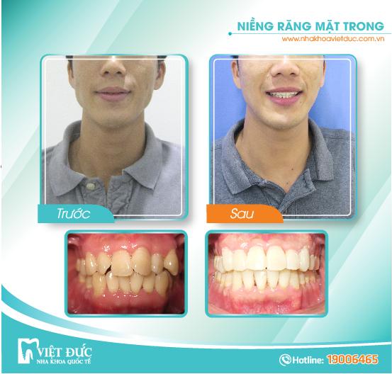 Ngô Văn Chiểu, 29 tuổi, Long Biên, răng hô, lệch lạc, sai khớp cắn, chỉnh nha mặt trong cả 2 hàm