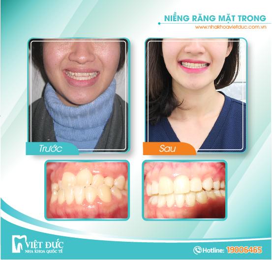 Vương Thị Ngọc, 35 tuổi, Hải Phòng, răng hô, chỉnh nha mặt trong cả 2 hàm.