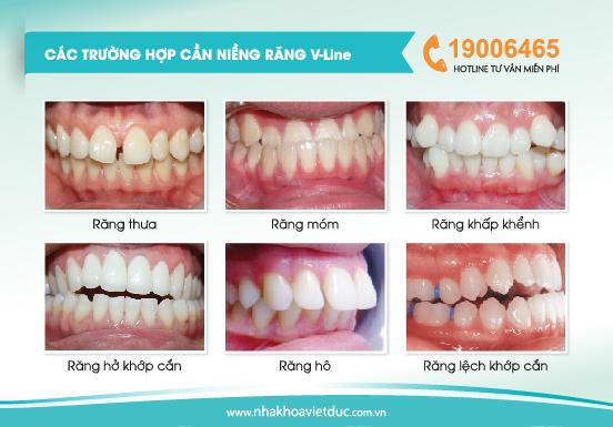 Niềng răng Vline phù hợp với hầu hết các trường hợp răng sai lệch, hô, móm, khấp khểnh…