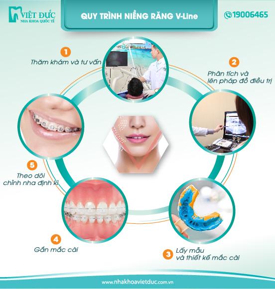 Quy trình niềng răng Vline tại nha khoa Quốc tế Việt Đức