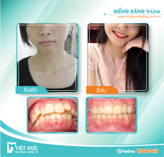 Bùi Khánh Huyền, 24 tuổi, Hà Nội, hô hàm, khấp khểnh, niềng răng Vline vả hai hàm