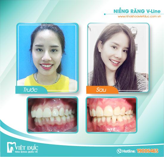 Lê Kiều Vân, 26 tuổi, Hà Nội, răng hô, niềng răng Vline cả hai hàm
