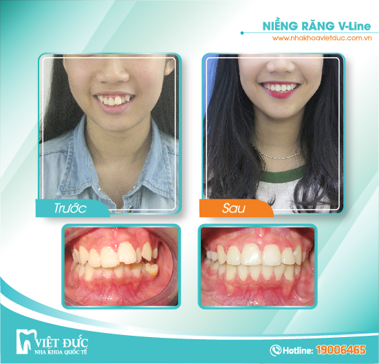 Nguyễn Thị Ngọc Mai, 20 tuổi, Hải Phòng, hô răng, khớp cắn lệch, niềng răng Vline cả hai hàm
