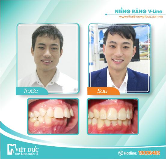 Nguyễn Văn Vịnh, 28 tuổi, Bắc Giang, hô hàm, răng khấp khểnh, niềng răng Vline cả hai hàm.