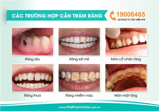 cac-truong-hop-tram-rang