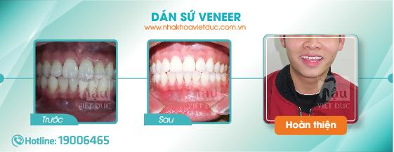 khach-hang-dan-su-veneer1