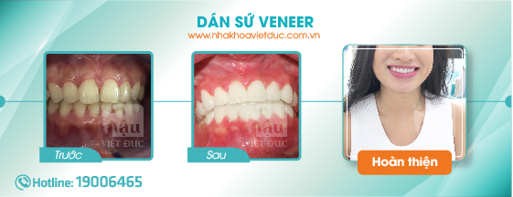khach-hang-dan-su-veneer2