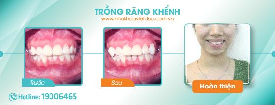 khach-hang-tram-rang-khenh1