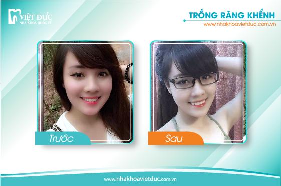 khach-hang-tram-rang-khenh3