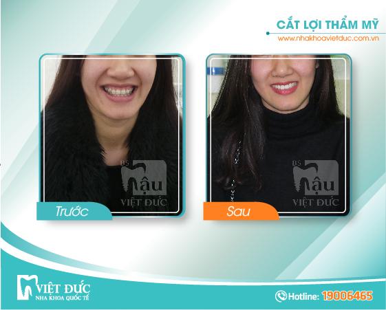 khach-hang-cat-loi-tham-my4