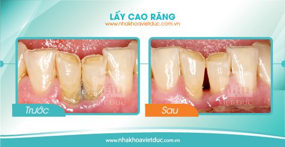 khach-hang-lay-cao-rang1