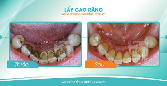 khach-hang-lay-cao-rang2