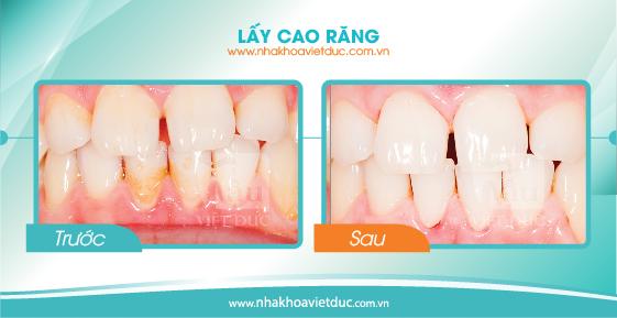 khach-hang-lay-cao-rang4