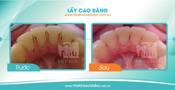 khach-hang-lay-cao-rang5