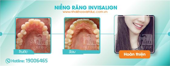khach-hang-nieng-rang-invisalign1