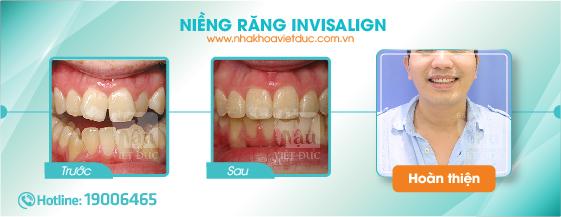 khach-hang-nieng-rang-invisalign3