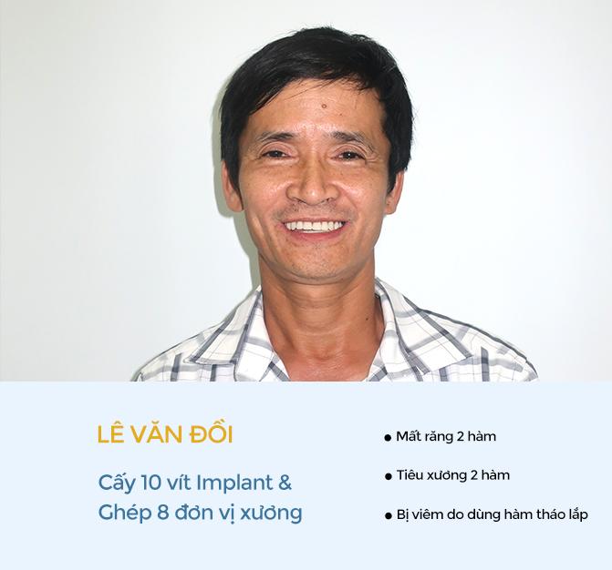 Lê Văn Đồi