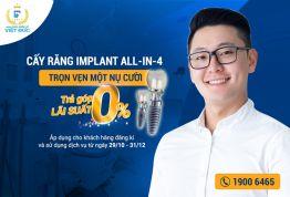 """"""" HOT"""" cấy Implant trả góp lãi suất 0đ, ưu đãi lên đến 35 triệu đồng"""