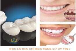 Đi tìm đáp án: Đâu là địa chỉ bọc răng sứ tốt và an toàn hiện nay?