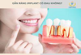 Bác sỹ trả lời: Gắn răng Implant có đau không?