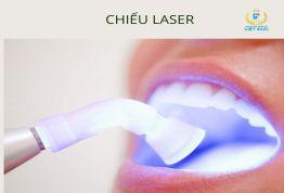 4 bước chuẩn trong quy trình hàn răng sâu An toàn & Không ê buốt