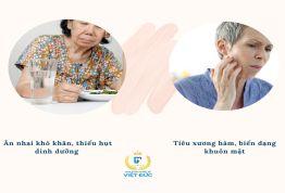 Ngày Tết – Nỗi khổ của người già mất răng