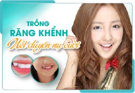 Trám răng khểnh