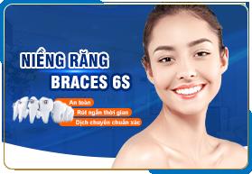 Niềng răng Braces 6S