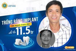 Khuyến mãi trồng răng Implant - off 15% chỉ từ 11.5 triệu