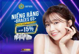 OFF 15% – Niềng răng Braces 6s Công nghệ hiện đại số 1 thế giới
