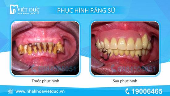 khach-hang-phuc-hinh-thao-lap